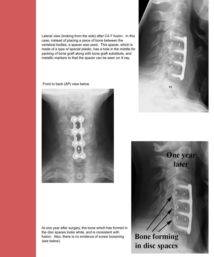 Sex following cervical spine surgery recovery