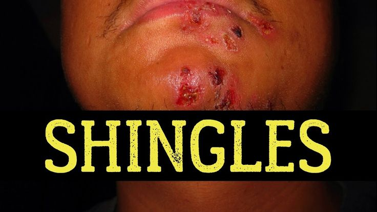 Top 20 Foods to Avoid For Shingles