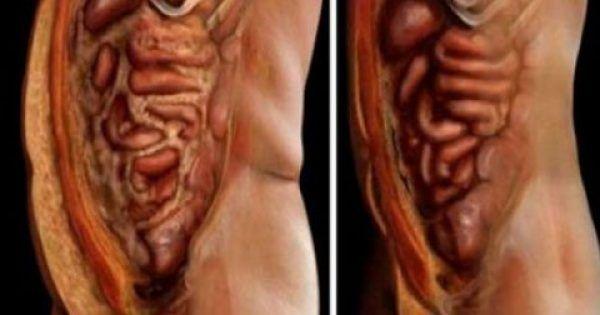 Αυτά τα 2 υλικά θα σε βοηθήσουν να αποβάλλεις το λίπος και τα παράσιτα που βρίσκονται στο σώμα σου χωρίς κόπο!