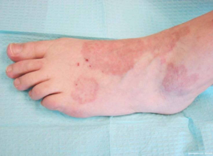 The granuloma annular disease is a very rare disorder, chronic dermatologic Welk appears as red bumps on the skin arranged in a circle or ring. Natural Herbs Clinic provides a very effective formula for the granuloma annular treatment without any side effects.... http://www.naturalherbsclinic.com/Granuloma-Annulare.php