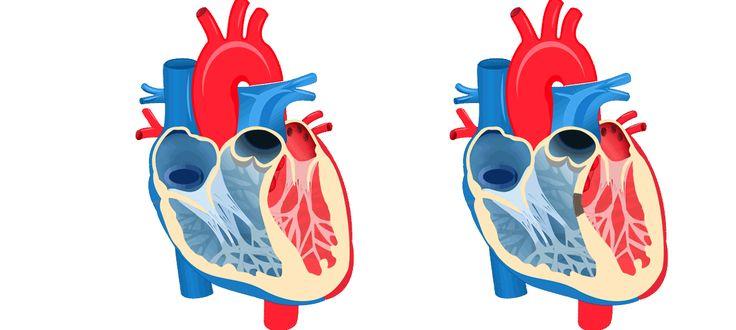 Sanger Institute - Largest #genomic study of #heartdisease in children reveals…