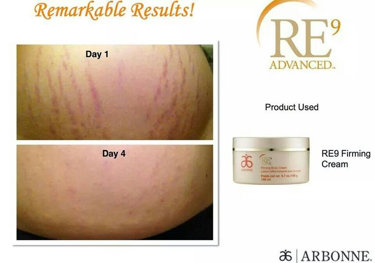 Firm and watch stretch marks disappear. Results driven ultra premium products.  Order at vanessadokko.arbonne.com