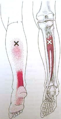 Tibialis Pos Trigger Point Diagram
