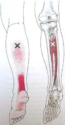 Tibialis Pos Trigger Point Diagram