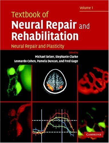 25 best opthalmo images on pinterest medical med school and free textbook of neural repair and rehabilitation volume 1 neural repair and plasticity pdf fandeluxe Image collections