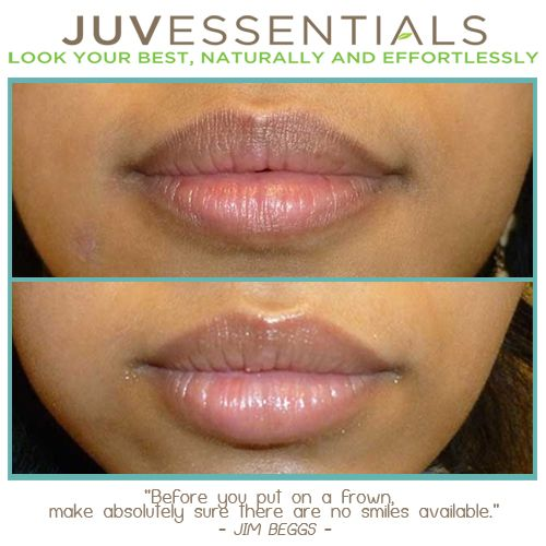 If You Have Too Much Brown In Your Lips A Permanent Lip Tattoo Can Lighten The Appearance Of A