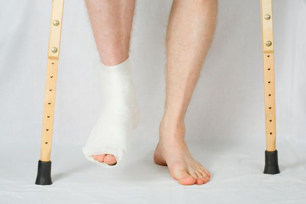 What is Ankle Fracture? A fractured ankle can range from a hairline fracture or a simple break in one bone, which may not stop you from walking, to several fractures and may require that you not put weight on it for a few months.  Every fracture is unique and it can also occur with simultaneous tears of the ligaments.