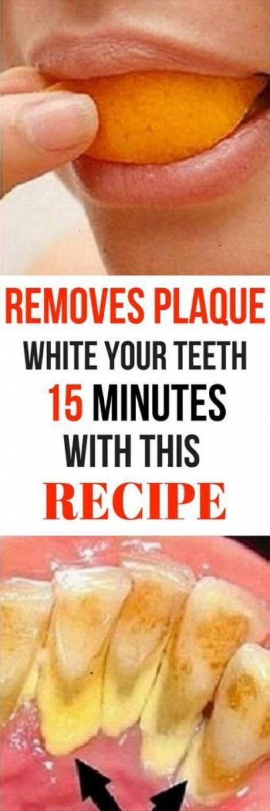 REMOVES PLAQUE AND WHITEN YOUR TEETH IN 15 MIN WITH THIS RECIPE THAT A DENTIST E…