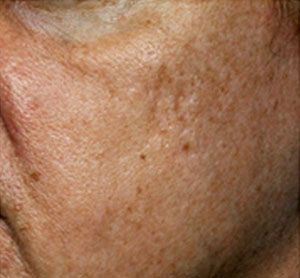 Home Remedies for Age Spots • Grandma's Home Remedies