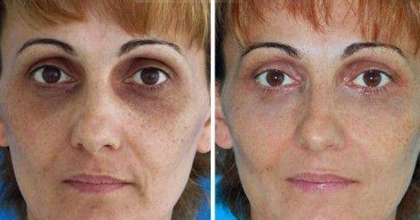 combatir ojeras http://www.labioguia.com/notas/como-combatir-los-ojos-cansados-las-ojeras-y-la-hinchazon-con-bicarbonato-de-sodio