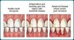 24 hour Emergency Dentist San Antonio #Emergency_dental_clinic_San_Antonio #Emergency_Dentist_in_San_Antonio #Dentist_Emergency_San_Antonio