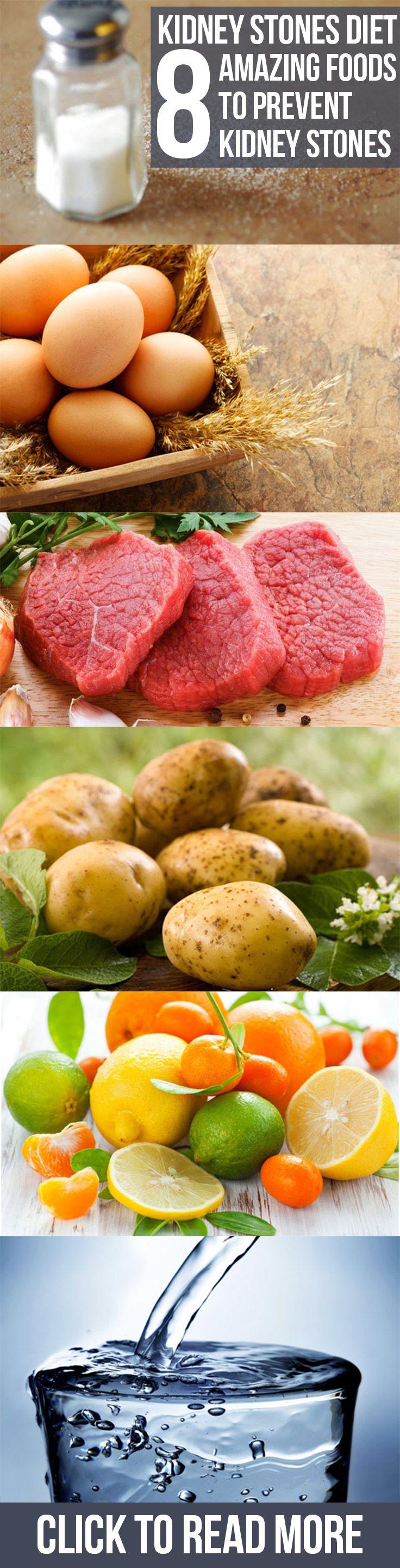 Kidney Stones Diet – 8 Amazing Foods To Prevent Kidney Stones