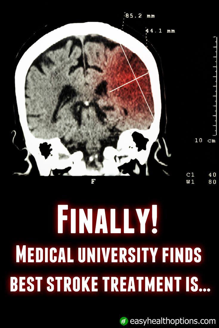 Finally! Medical university finds best stroke treatment is…