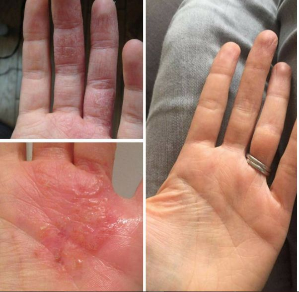 "Ali, 32 on the Aron Regimen for 5 months. Started at 6 applications a day, now uses the compound once a week on palms and once every other day on fingers. ""I was very hesitant because there are very few [dyshidrotic] case studies on this with Dr Aron, but the man has sorted me out. I can't believe it. So glad I did this, am so much happier it's unreal. Oh - and engagement and wedding rings well and truly back on!"""