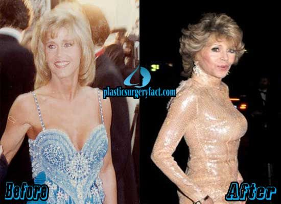 Jane Fonda Breast Implants Before and After | http://plasticsurgeryfact.com/jane-fonda-plastic-surgery-before-and-after-photos/