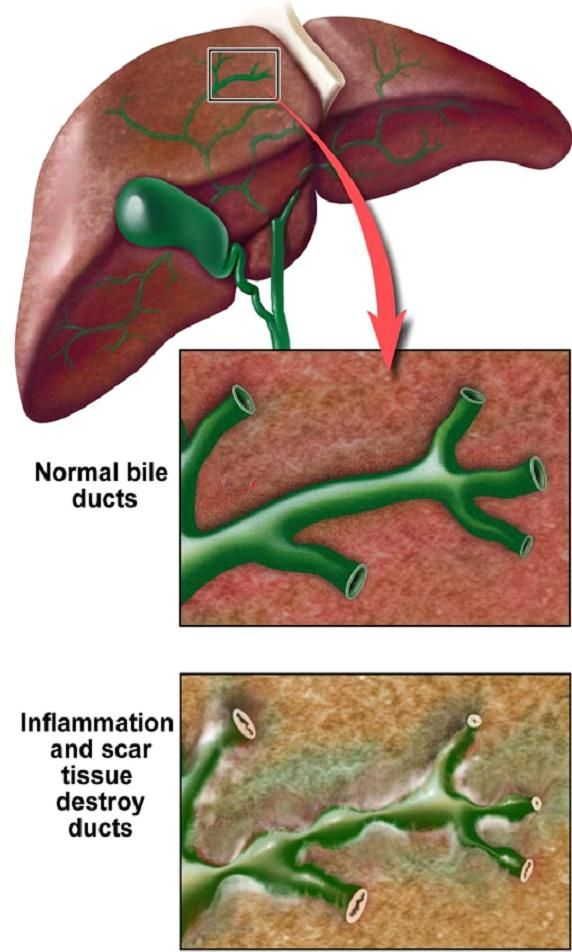 Sclerosing cholangitis is the disease of bile ducts wherein inflammation causes scars within the bile ducts. These scars make the bile ducts narrow and hard.... http://www.natural-health-news.com/sclerosing-cholangitis-primary-sclerosing-cholangitis