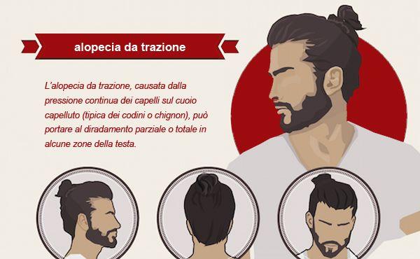 L'alopecia da trazione causata dalla coda di cavallo: l'ultima moda maschile lanciata dagli hipster può provocare diradamento e calvizie e un indebolimento generale dei capelli   #capelli #calvizie #hipster #istitutohelveticosanders #modacapelli #style #haircare #manbun