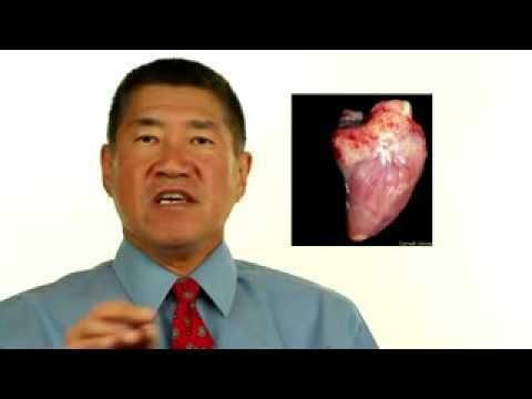 Epicardial fat a risk factor for heart disease in rheumatoid arthritis - WATCH VIDEO HERE -> http://arthritisremedy.info/epicardial-fat-a-risk-factor-for-heart-disease-in-rheumatoid-arthritis/     *** what is seronegative rheumatoid arthritis ***  Another risk factor for heart attacks in rheumatoid arthritis… fat around the heart? Epicardial fat a risk factor for heart disease in rheumatoid arthritis Nancy Walsh writing in Medpage Today reported on a study from Vanderb
