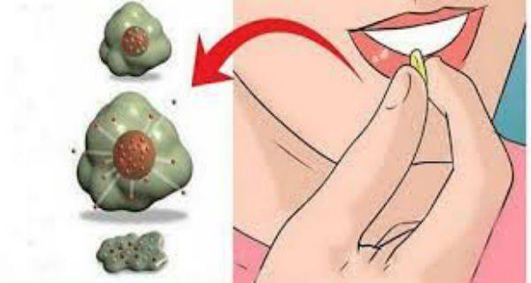 Dieta pentru persoanele cu varice: Asa iti mentii venele sanatoase