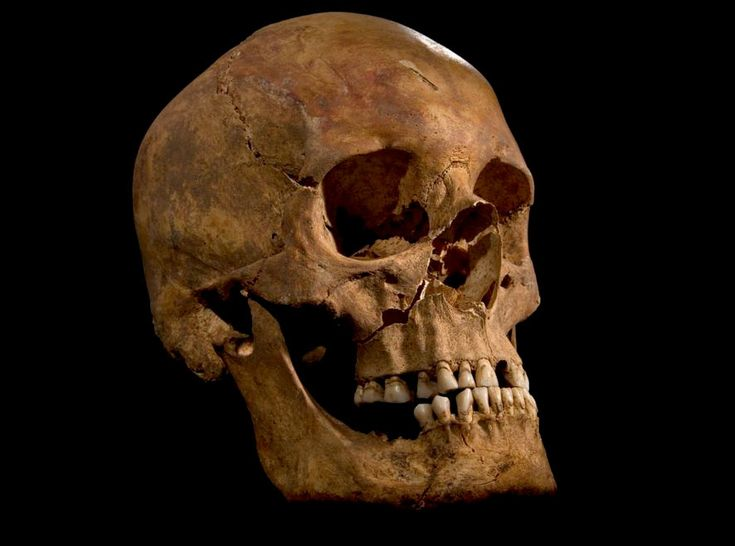 The skull of the skeleton found at the Grey Friars excavation in Leicester, identified as that of King Richard III.