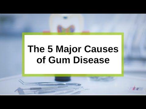 The 5 Major Causes of Gum Disease www.preventdentalsuite.com.au