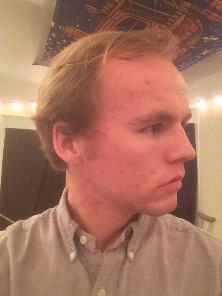What should I do with my hair? Longer? Shorter? Pretty bad hairline... http://ift.tt/2AMHAJS