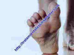 Existen una cantidad de causas del dolor en la planta de los pies que muchas personas desconocen y que estan haciendo mal, es importante que sepas muy bien lo que podría estar ocasionandote ese dolor en el talón de los pies para asi prevenirlos y evitar la fascitis plantar.  En este artículo va... - http://tratamientofascitisplantar.com/causas-del-dolor-en-la-planta-de-los-pies-diversas/