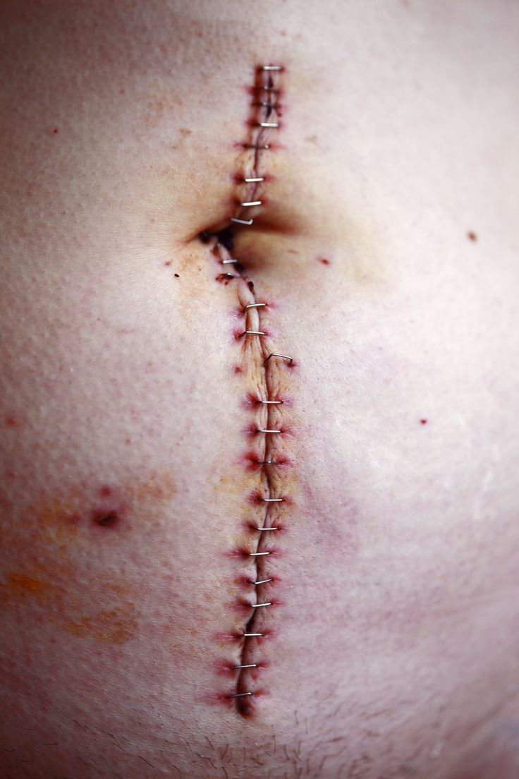#person #skin #piercing #stitched #stomach #Close …