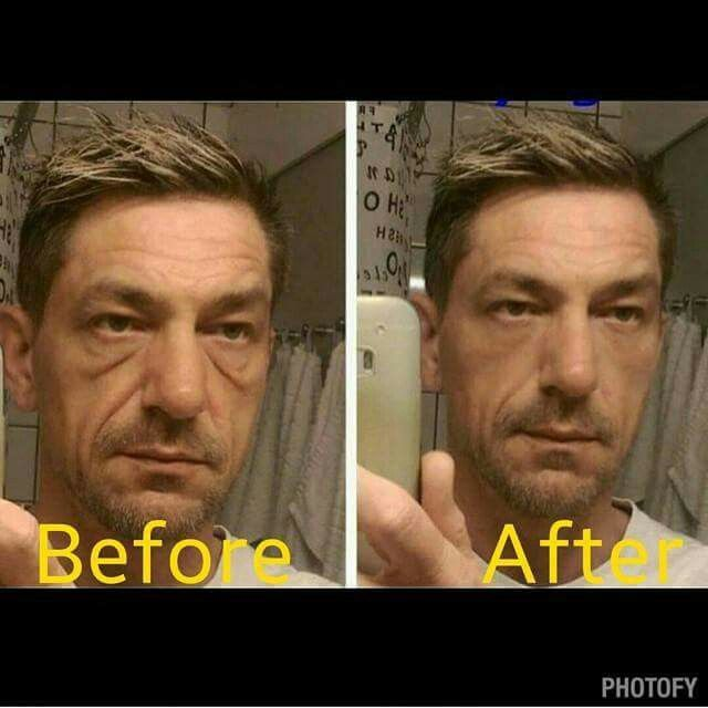 Instantly Ageless is being called botox in a bottle!  This is after 3 minutes,  look at the results!!!  Www.kendi73.jeunesseglobal.com for more information