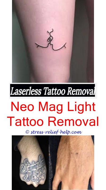 Tattoo Removal Baton Rouge : tattoo, removal, baton, rouge, Tattoo, Removal, Cardiff, Design