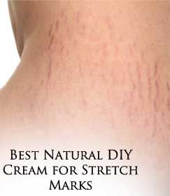 Best Natural DIY Cream for Stretch Marks- gonna try this.