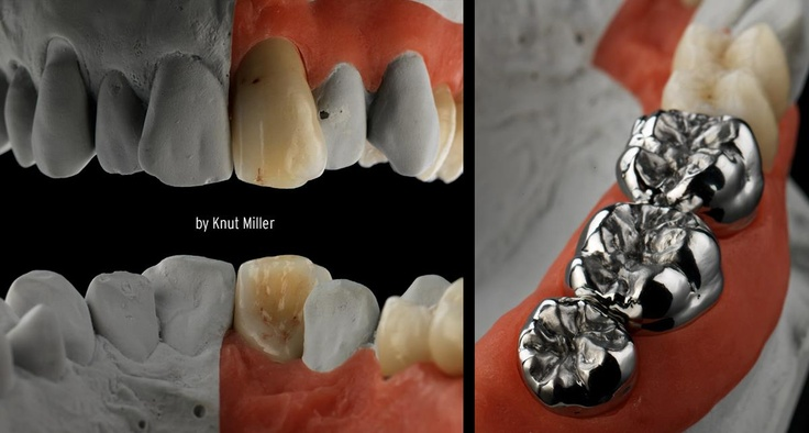Master piece - Multi-Case out of Ceramill Zolid, Sintron® and Creation ZIF by MDT Knut Miller