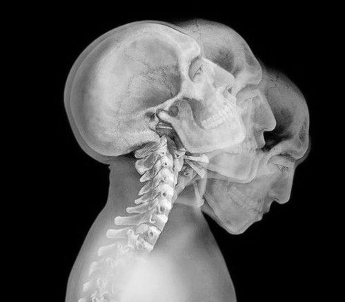 X-Rays Art. Flexion/extension c-spine in motion.