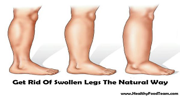 Get Rid Of Swollen Legs The Natural Way