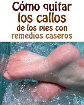 Cómo quitar los callos de los pies con remedios caseros  #talones #callos #pies