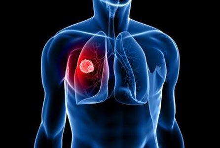 A légzőszervi betegségek lelki háttere