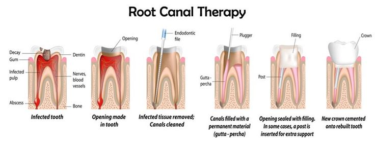 You just visit a dental clinic for routine checkups and dentist recommend you the root canal treatment, you will think really you require this treatment and worried about this.