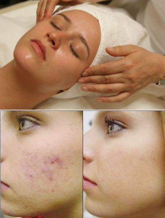 Facial black mole homeopath medicine remova good see