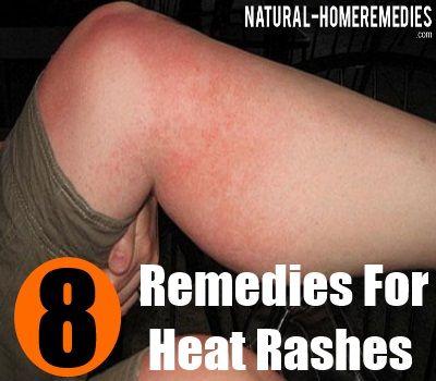 8 Excellent Home Remedies To Treat Heat Rash