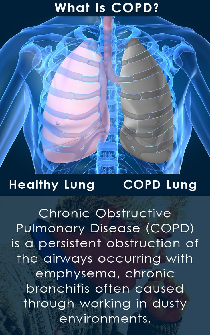 Over 64 Million people in the world are currently suffering from COPD. Smoking and passive smoking is the main cause of COPD, alongside other common factors such as air pollution and working in an environment with lots of fumes and dust.   Those suffering from COPD caused through working can claim: http://www.atriumlegal.com/what_we_do/copd_bronchitis_emphysema_/index.html