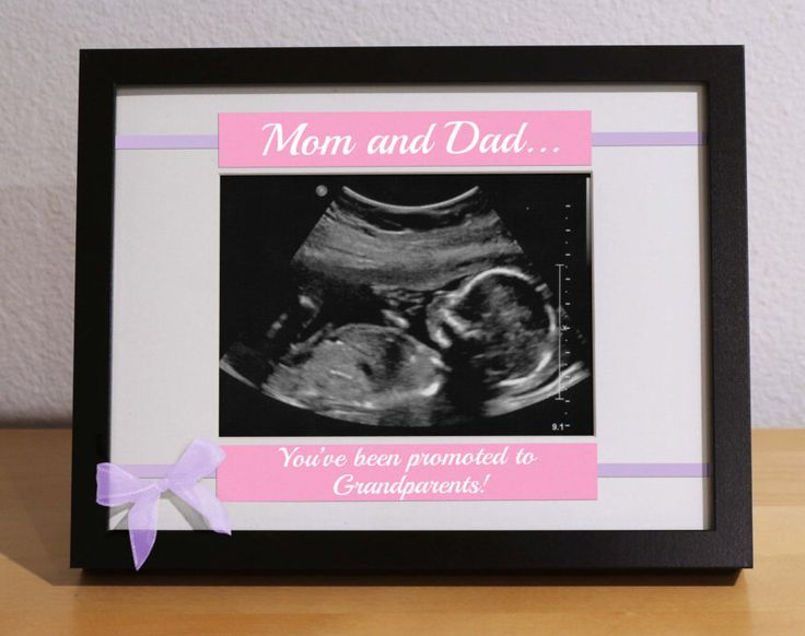 New Grandma Gift, First time Grandparents, New Grandparents Gift, Ultrasound Frame, Custom Frame, Personalized Gift, New Grandpa, Expecting by KimKimDesigns on Etsy https://www.etsy.com/listing/245731893/new-grandma-gift-first-time-grandparents