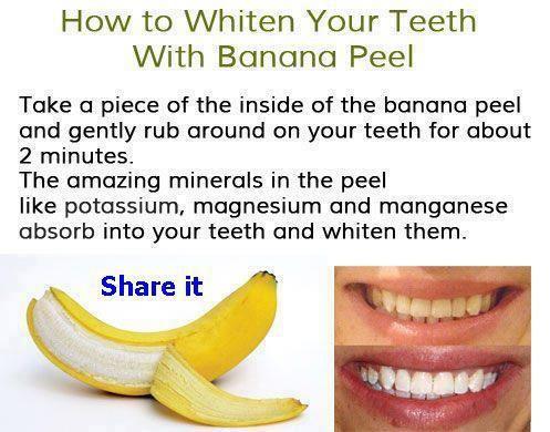 How to whiten your teeth with Banana Peel!