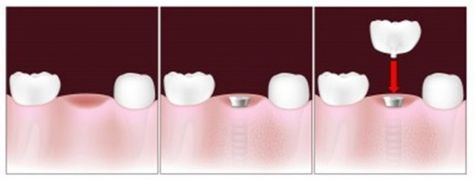 The picture shows the three step dental implant process to replace a missing tooth, whether you need a tooth implant, want to find out about mini dental implants for dentures or implant supported bridges for larger gaps, all your questions are answered here in terms of what to expect, possible problems and likely costs. Helpful animated videos to explain the processes too.