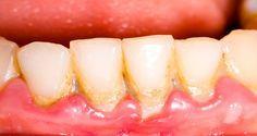 Πάρτε ένα κουτάλι σούπας κάθε μέρα και να σώσει τα δόντια σας - την απομάκρυνση της πλάκας με έναν πολύ απλό και φυσικό τρόπο