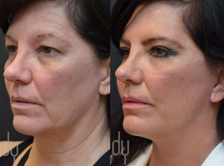 Beverly Hills Facelift Specialist Dr. Donald Yoo performed a deep plane facelift…