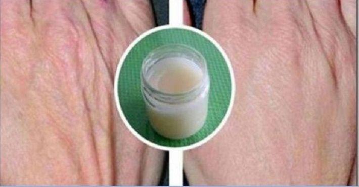 Nossas mãos vivem tendo contato com vários produtos químicos: detergente, sabão, entre outros produtos de beleza.