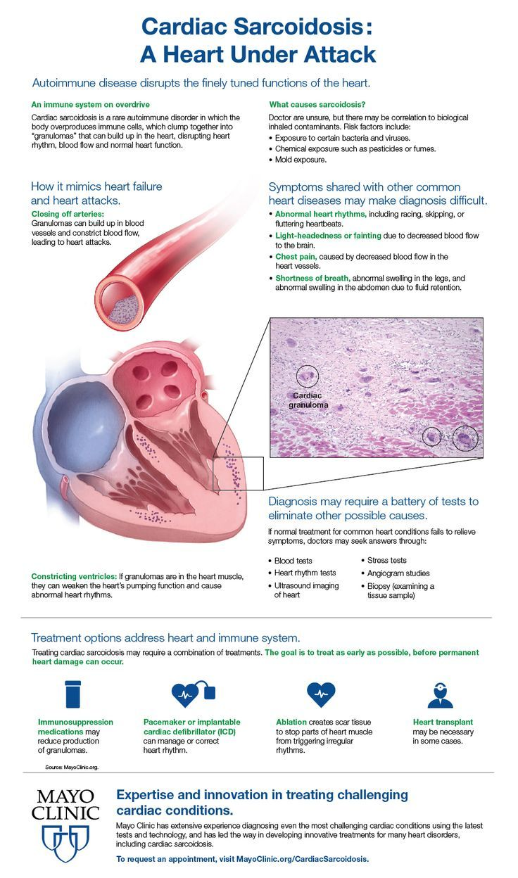 Cardiac Scariodosis A Heart Under Attack The Autoimmune Disease Disrupts The Finely Tuned Functions Of Autoimmune Disease Health And Fitness Magazine Cardiac