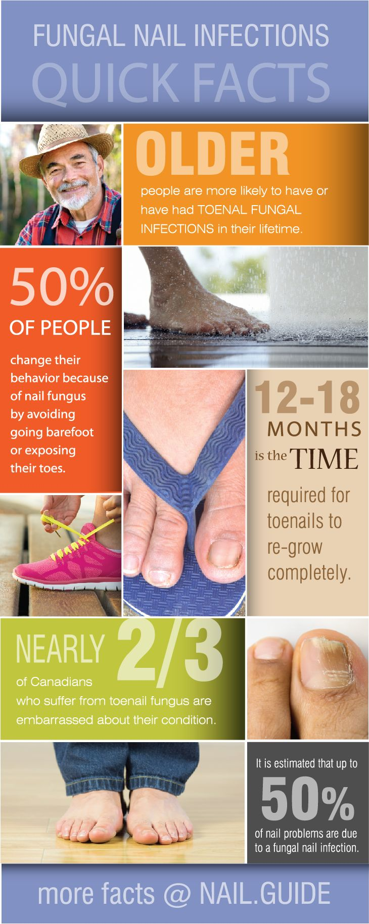 Facts about Fungal Nail Infections