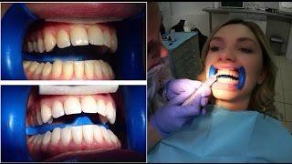 ОТБЕЛИВАНИЕ ЗУБОВ ПОДРОБНО Отбеливание Зубов не только имеющий важное значение вопрос, не прихоть, но ... http://3dwhite.in.net/
