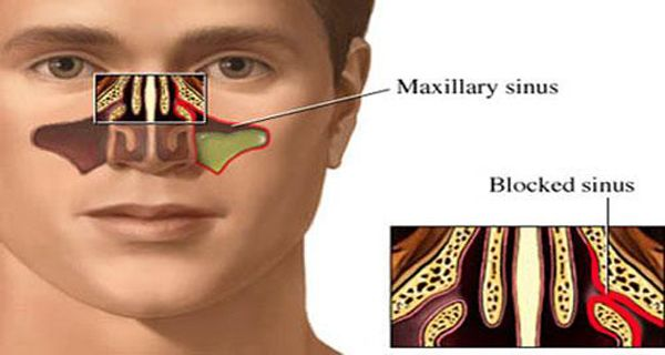 how to clear clogged sinus naturally